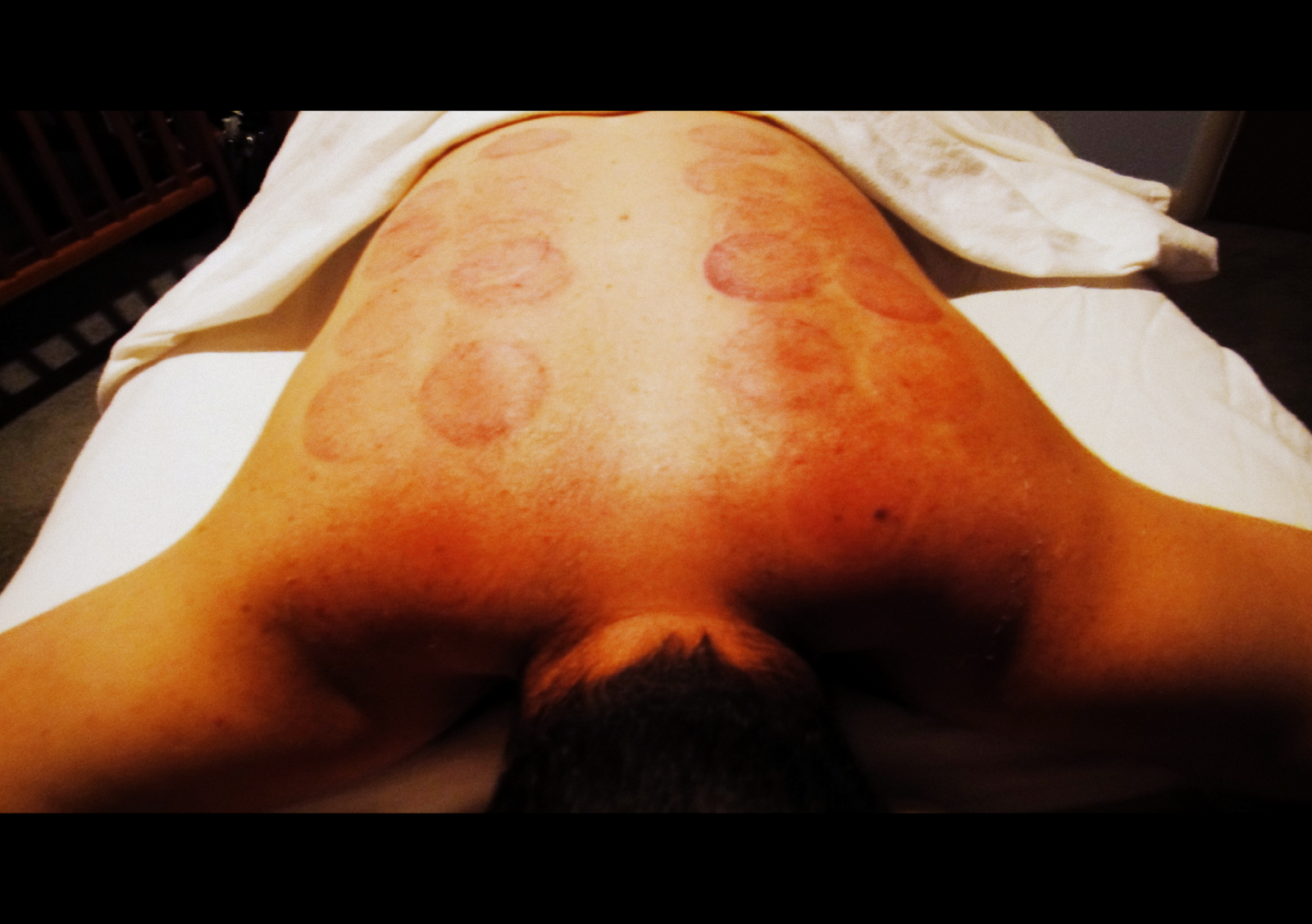 cupping back 2